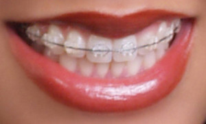 clear braces cost more
