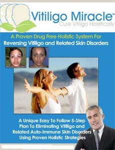 vitiligo miracle system reviews