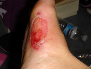 Wilderness First Aid Bad Foot Blisters