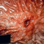 Pic: http://www.medicalook.com/diseases_images/stomach_ulcer2.jpg