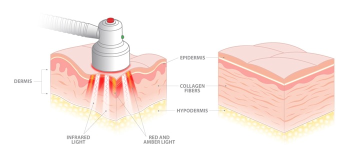 Light therapy on skin