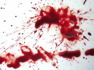 Pic: http://fc00.deviantart.net/images/i/2003/47/7/a/TemocStock_blood_stains02_.jpg