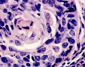 Pic: http://www.eurocytology.eu/static/eurocytology/image/mod3img1b.png