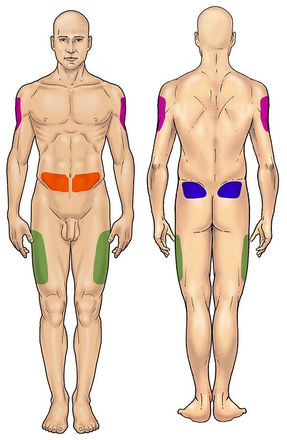 Somministrazione di insulina - Disegno 1