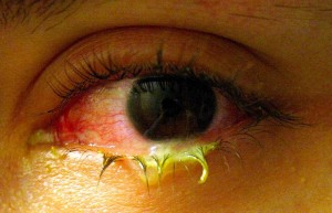 pictures of Bacterial Conjunctivitis