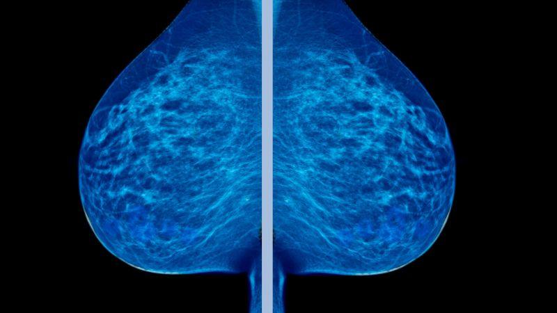 Mammogram image