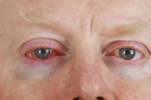 Herpes am Auge