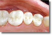 White Composite Fillings Marietta
