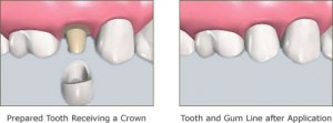 Dental Crown Marietta GA