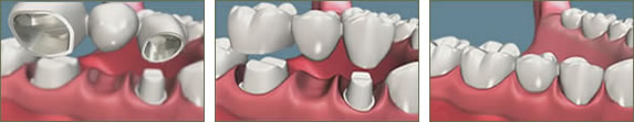 Dental Bridges Marietta