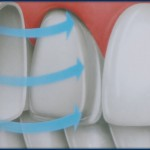Marietta Dental Veneers