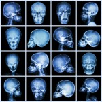 X-ray skull picture