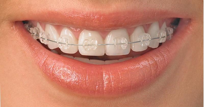 Sapphire brackets1-e1320902274850