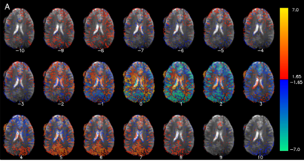 Low-frequency fluctuations in the cardiac rate as a source of variance in the resting-state fMRI BOLD signal