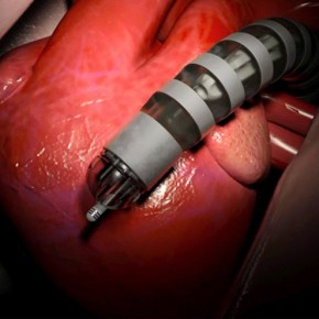 Medrobotics' New Flex System for Snake-Like Surgical Endoscopy Cleared in Europe