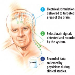 Medtronic's Deep Brain Stimulators With Recording Function Implanted in First U.S. Patients