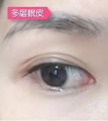 三层或多层眼皮