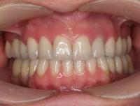 Braki uzupełnione na implantach, estetyka startych zębów skorygowana poprzez zastosowanie licówek ceramicznych.