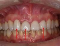 Stare rekonstrukcje, 3 zaznaczone zęby muszą zostać usunięte.