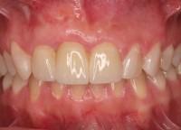 Stan po chirurgicznej rekonstrukcji tkanek i wykonaniu uzupełnienia protetycznego (most całoceramiczny).