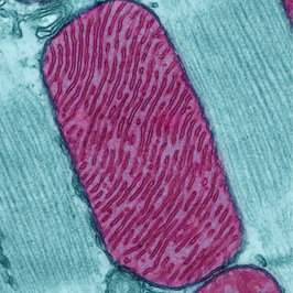 PINK1 protein crucial for removing damaged mitochondria