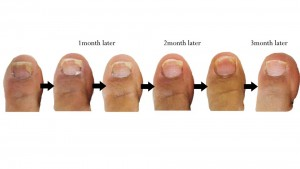 Nail Fungus-symptoms And Treatment cure remedies