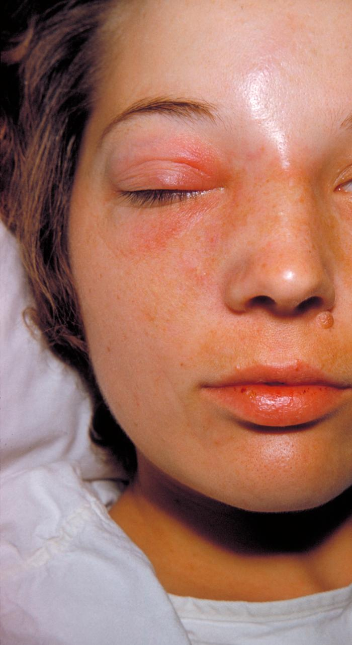 Staph Infection - Cellulitis