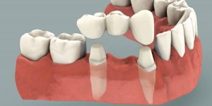 Dental Crowns & Bridges in Bangkok, Thailand