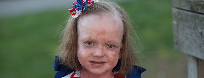 A little girl who has a rare disease