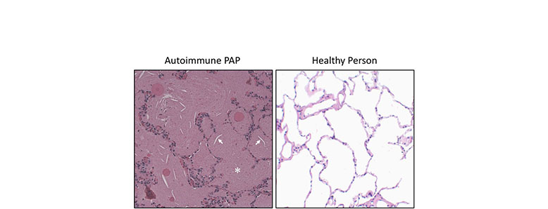 Autoimmune PAP shown next to healthy person