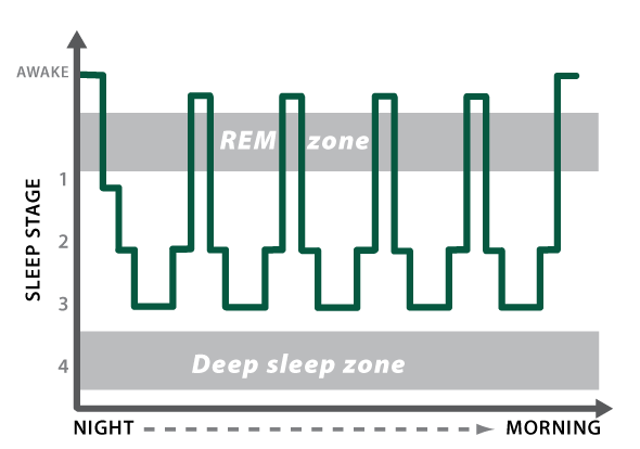 Figure 2_sleep with dementia