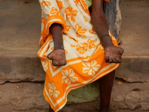 The effects of leprosy if left untreated
