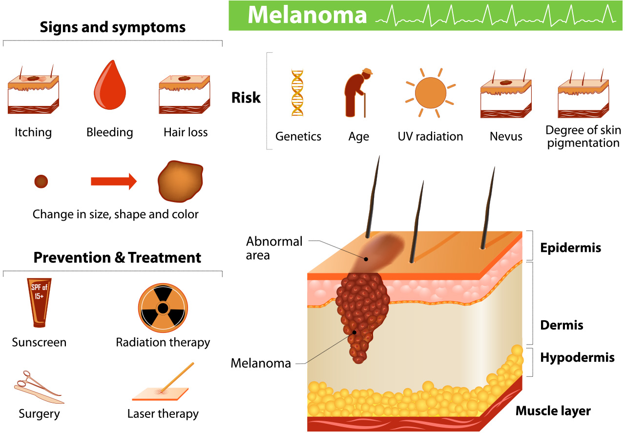 Skin Cancer Melanoma Diagram