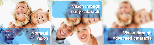 cataracts-view