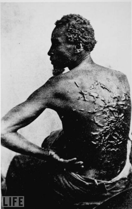 former-slave-showing-whipping-scars