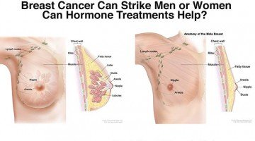 How Hormone Treatments Affect Male Breast Cancer