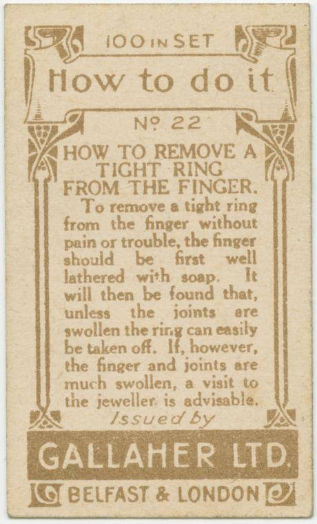 How to remove a tight ring from the finger-text