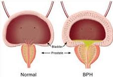 penyebab kelenjar prostat membesar