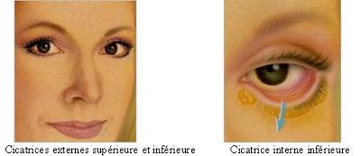 chirurgie des paupières - Blépharoplastie Tunisie