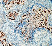 Immunohistochemistry (Formalin/PFA-fixed paraffin-embedded sections) - Anti-p53 antibody [E26] (ab32389)