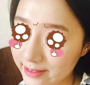 去韩国做了鼻子整形,驼峰鼻byebye了!