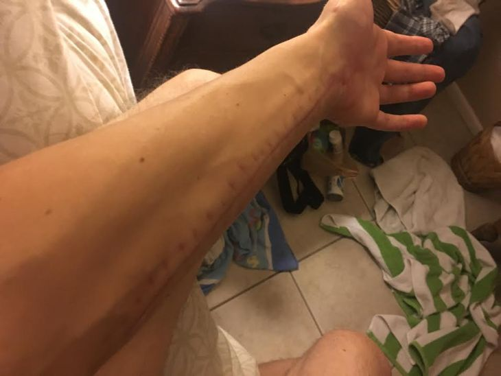 Arm healing from compartment syndrome