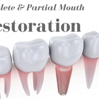Dentist Who Does Dental Implants In Chicago