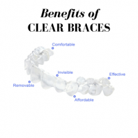 Orthodontist Who Does Invisalign In Chicago