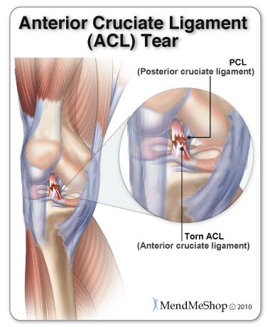 Knee Injury, Acl Tear