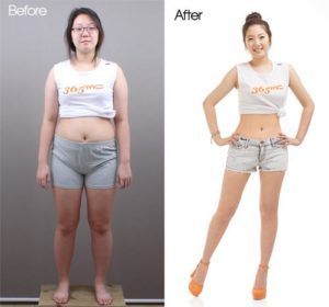 korean-plastic-surgery-clinic-2