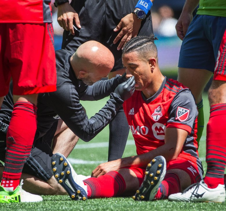A trainer assists with the bloody nose sustained by Toronto defender Justin Morrow in the 2nd half.  Toronto FC played the Seattle Sounders in a rematch of last year's MLS Cup Championship Saturday, May 6, 2017 at CenturyLink Field in Seattle.  (Dean Rutz / The Seattle Times)