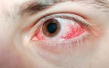 red eye, pink eye