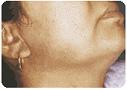 no facial hair around the neck