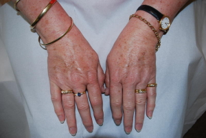 Hands before IPL Limelight treatment